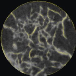 Bézier curves identifying alveolar bone structures